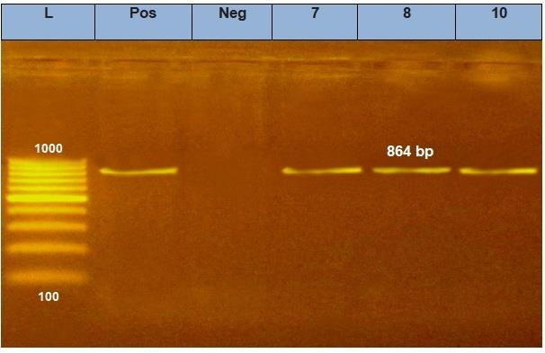 Gene_of_Pasteurella_multocida_Isolated_from_Rabbits
