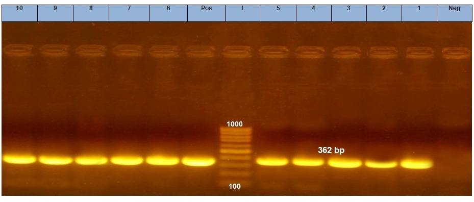 Gene_qacE1_with_Class_1_Integrons_in_Salmonella